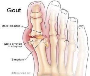 Gota, ácido úrico, artrite, reumatismo